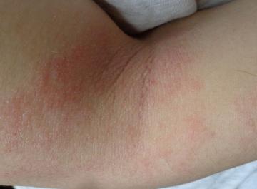 Imágen de dermatitis atópica